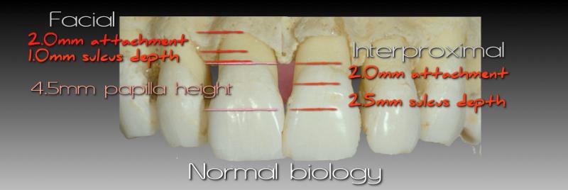 Facial and interproximal heights, normal biology.
