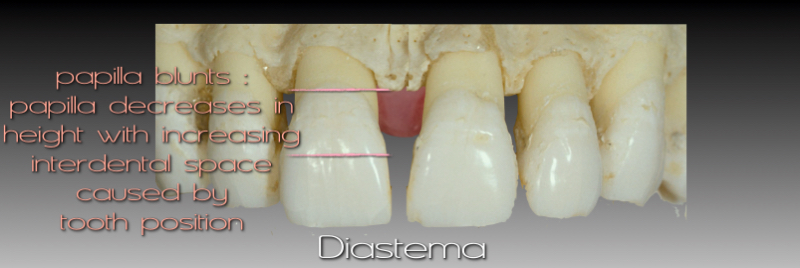 Diastema: papilla blunts - papilla decreases in height iwth increasing interdental space cause by tooth position.