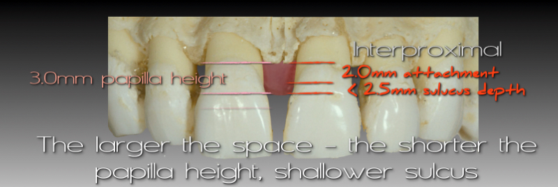 The larger the space, the shorter the papilla height, shallower sulcus.