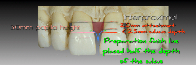 Preparation finish line placed half the depth of the sulcus.