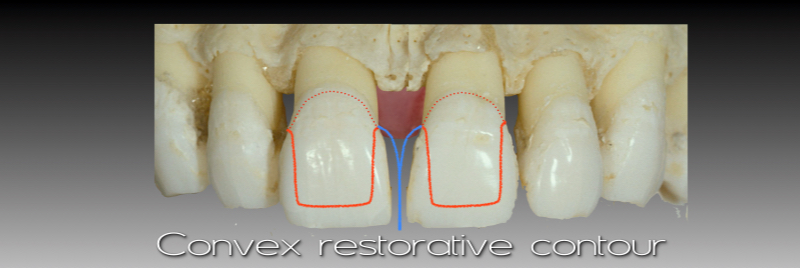 Convex restorative contour.