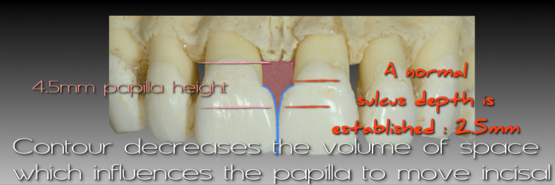 Contour decreases the volume of space which influences the papilla to move incisal.