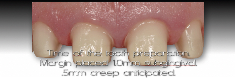 Time of the tooth preparation. Margin placed 1.0 mm subgivinval, .5 mm creep anticipated.