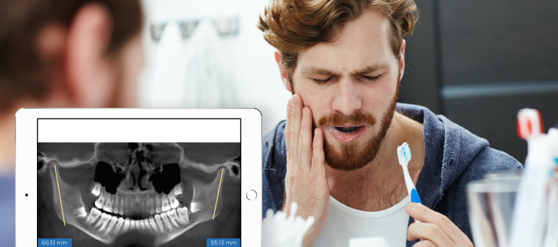 man holding his jaw in pain, with an overlay of an ipad with an xray of a jaw