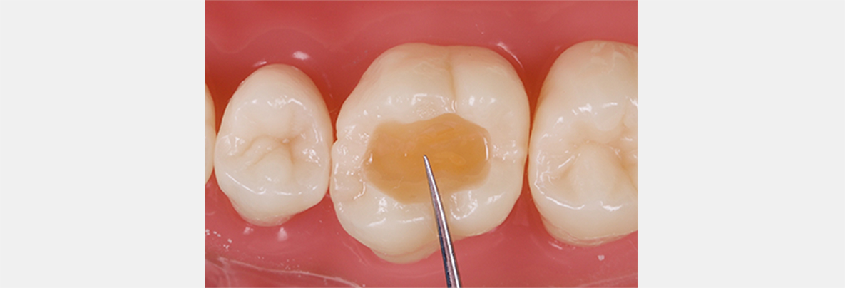Ideal placement of the mid-buccal fissure should be a right angle to the theoretical line drawn between mesiobuccal and distobuccal cusp tips.