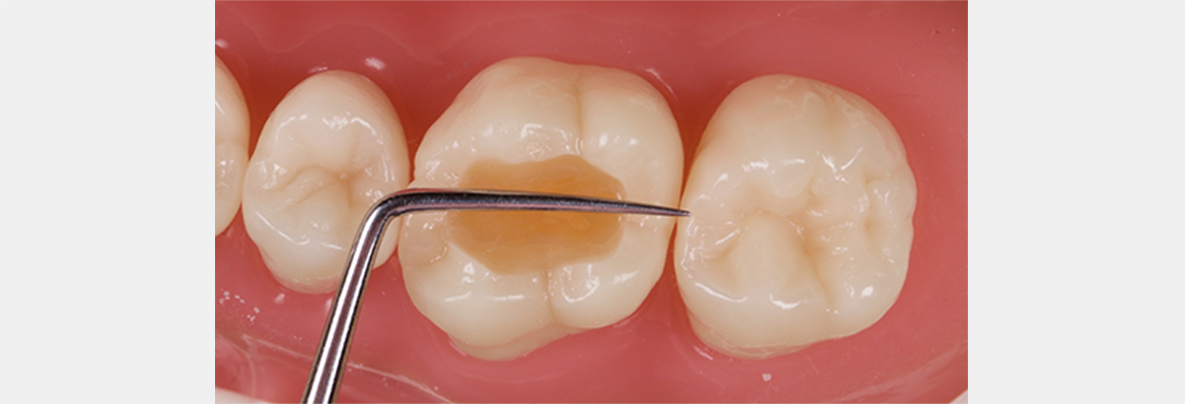 The tip of the MB cusp extends roughly to a line approximating that of the midpoints of the mesial and distal marginal ridges.