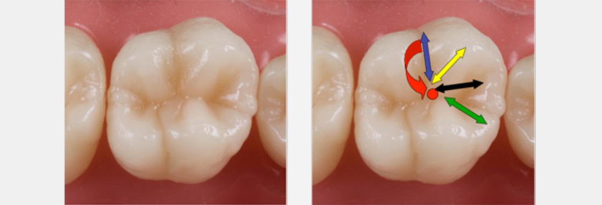 Ensure that the palatal fissure runs distally to recreate the transverse ridge.