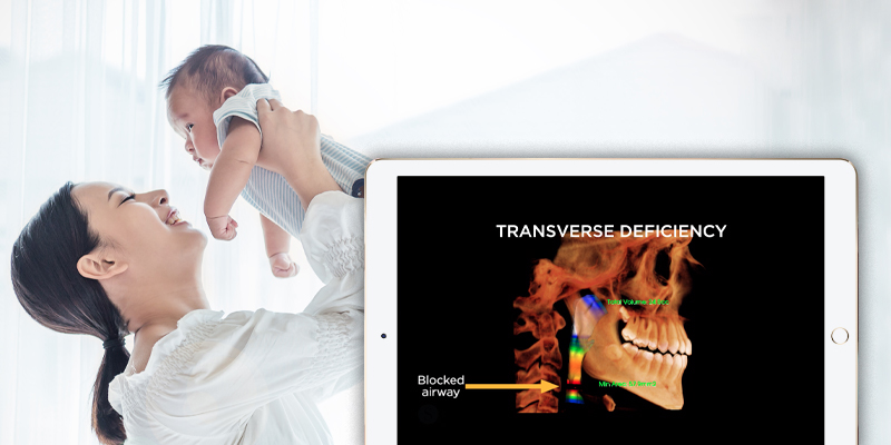 smiling mother lifting a baby above her head, in the forground is an ipad with an x-ray of a skull