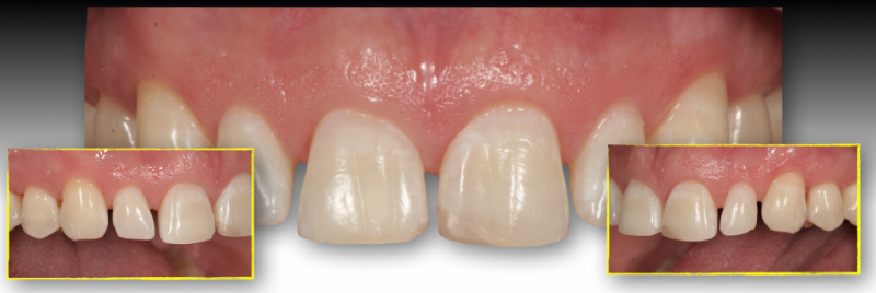Teeth with the black triangle.