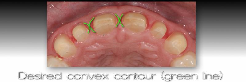 Desired convex contour.