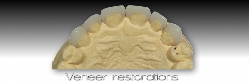 Contiguous transition from tooth to veneer.