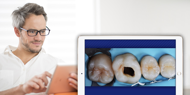man on an ipad in the forefront, a closeup inset of an ipad with 4 molars on the screen.