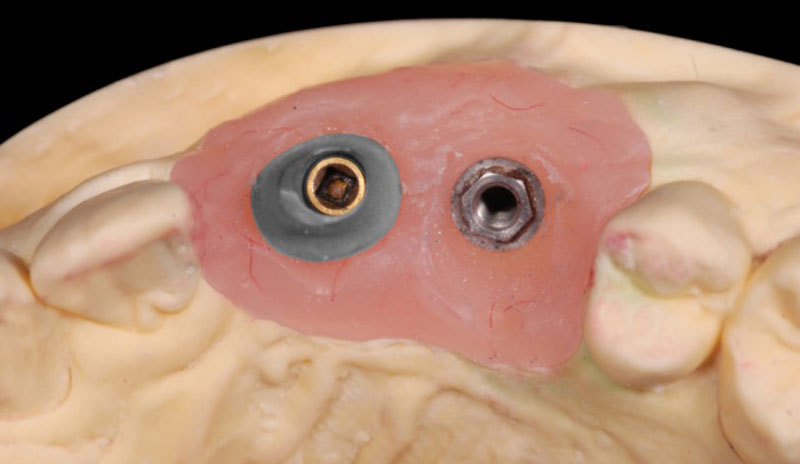 Example showing how it is not until the technician has poured the model and either did a diagnostic wax-up or digitally designed the abutment/crown, that the proper implant abutment can be selected.