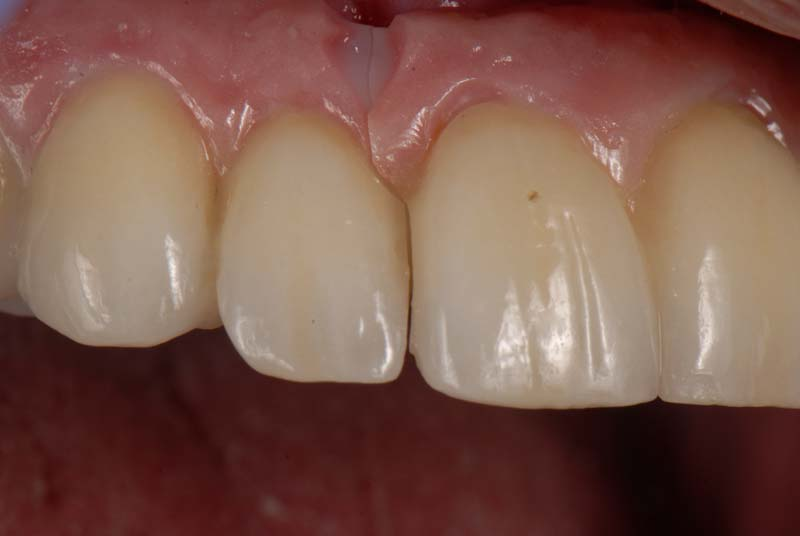 Frontal view of the fractured zirconia prosthesis, which had been inserted 4.5 years earlier