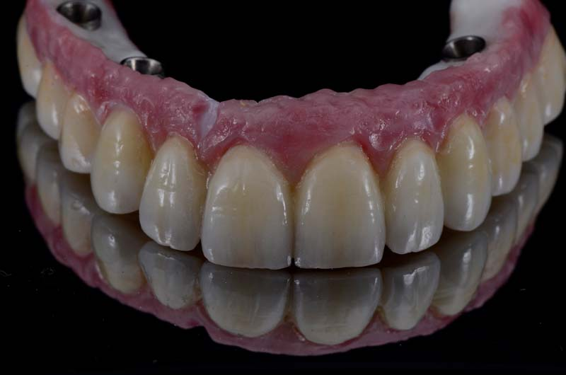 Prosthesis after cementation. Note the chipped part of the layered pink porcelain.