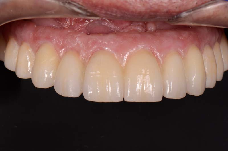 Intraoral view of the repaired prosthesis. Note the pink area was repaired with pink composite.