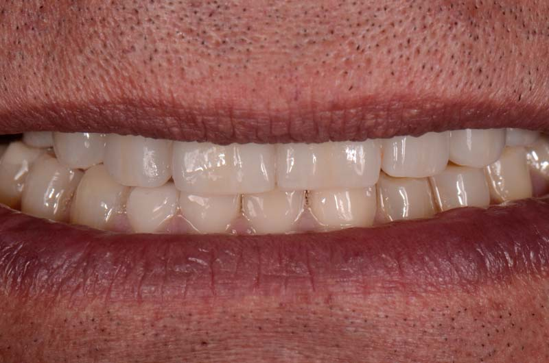 Patient's smile with repaired prosthesis.