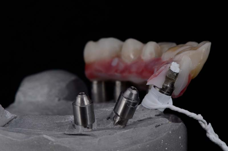 Both pieces of the prosthesis were secured in the master model to confirm the position.