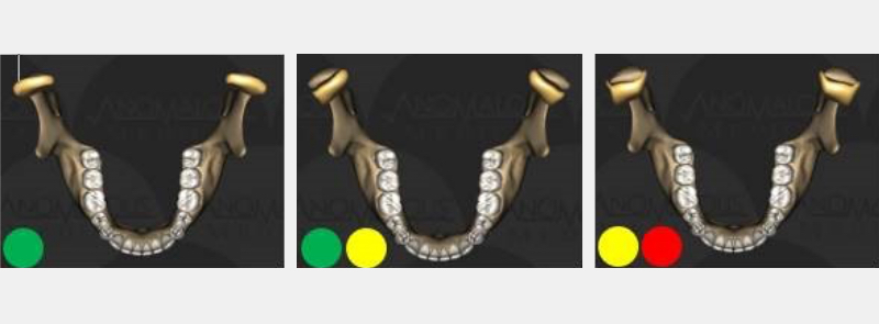 Three common presentations of jaw joints and Piper classifications: (far left)