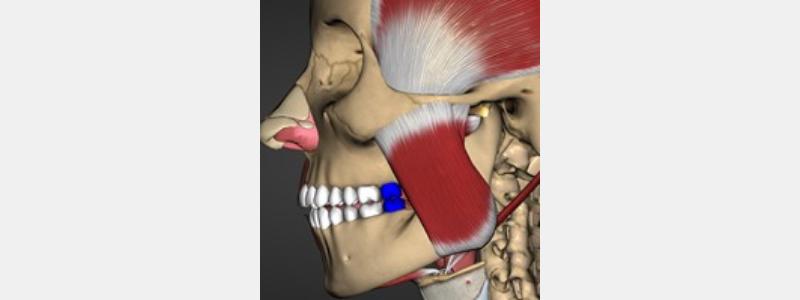 Masticatory muscles.