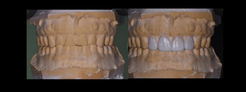 Dental models.