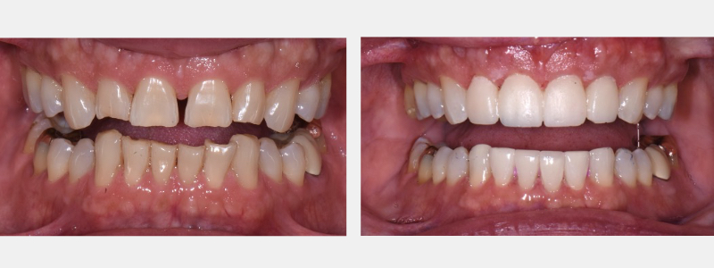 Before and after case examples with provisionals.