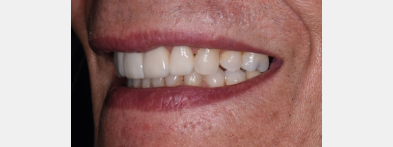 The final restorations were E-max cut back with porcelain layering. So when is the right time to change? When the student is ready, the teacher will appear. Repetition works.
