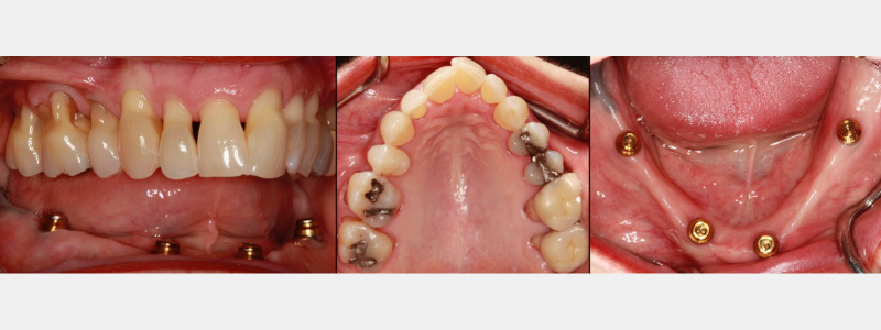 Maxillary dentition opposing four locator abutments supporting a removable overdenture prosthesis.
