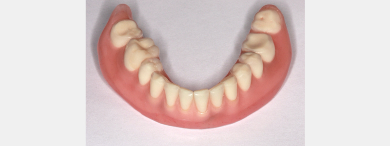 Using the existing contours of the previously functional occlusion, the existing overdenture was relined to match the mandibular supporting structures to the opposing maxillary dentition.
