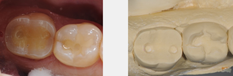 Figure 2: Very conservative posterior partial coverage tooth preparation