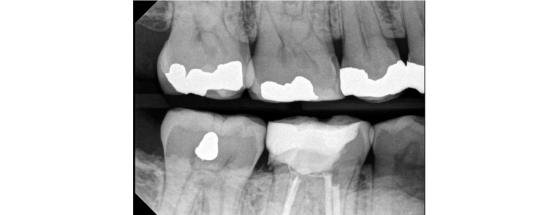 Overhang on the distal of #30 after a failed margin elevation attempt. The band was not flush against the tooth, leading to an overhang of the material.