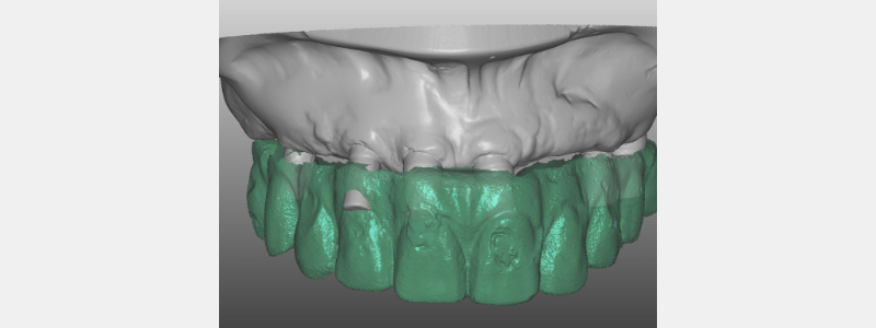 Once the models, implant abutments and prototype had been digitized, the accesses to the implant screws in the anterior implants were located on the buccal area.