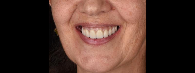 Final outcome of Dr. Mitrani's case showing the final restorative design