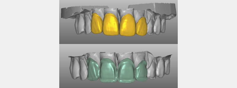 With the zirconium framework, the four anterior crowns were designed.