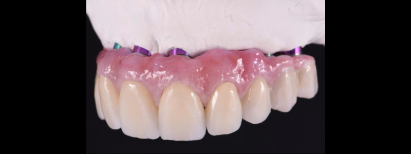 There is minimal space left for facial layering and, at the same time, gingival ceramic in the Zr framework.