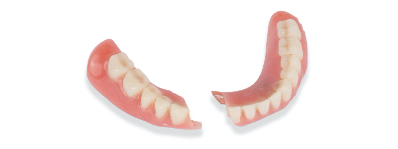 This article discusses managing a fractured denture base.