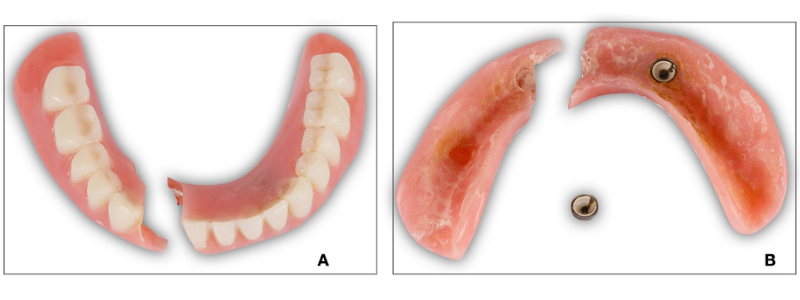 Figure 1. In Figure 1A, fibers from a previous repair are visible. Figure 1B reveals a more complex problem; the prosthesis is an overdenture and the denture base has fractured through the area of one of the housings.