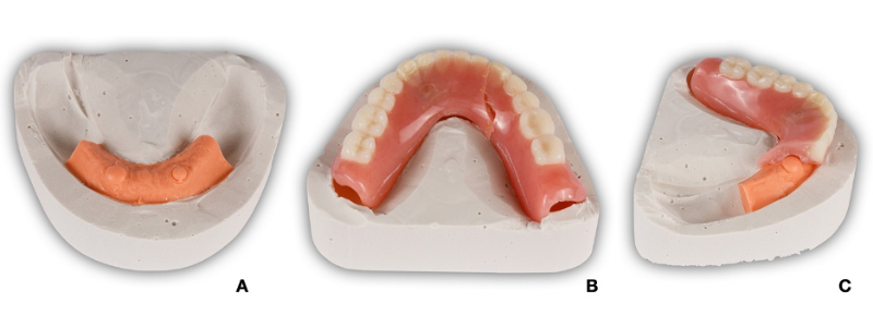 Figure 10. The remount cast has been fabricated in such a way as to leave the denture borders contacting the stone. This rigid contact will have no rocking or bouncing, ensuring accuracy and repeatability in the positioning of the fragments. The laboratory silicone component of the remount cast has been removed from the distal extensions (Figure 10A) to avoid interfering with seating of the denture base (Figure 10B). The anterior portion of the silicone has been left in place to help prevent repair material from flowing excessively into the denture base intaglio (Figure 10C).