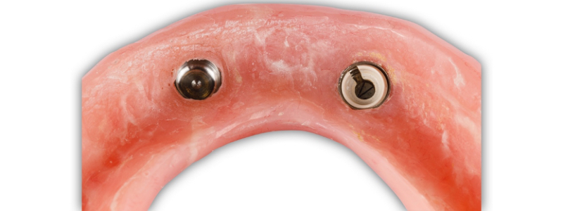 Figure 15. The new housing is attached to the repaired denture base.