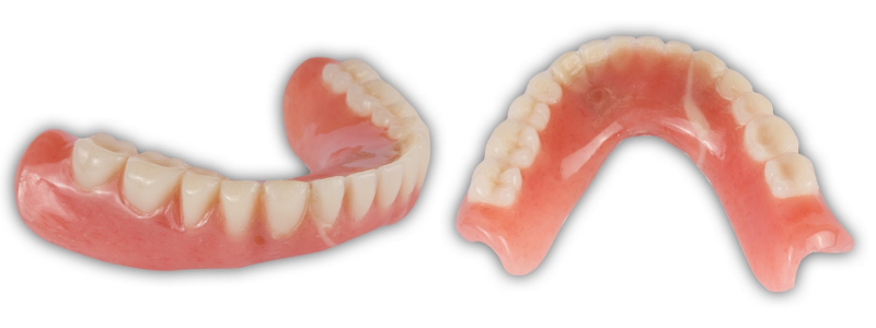 Figure 16. Denture base repair and chairside pick-up completed. Note the pink material filling the vent from the pick-up (left) and the tooth-colored repair on the facial surface (left) and the larger repaired area on the lingual (right).