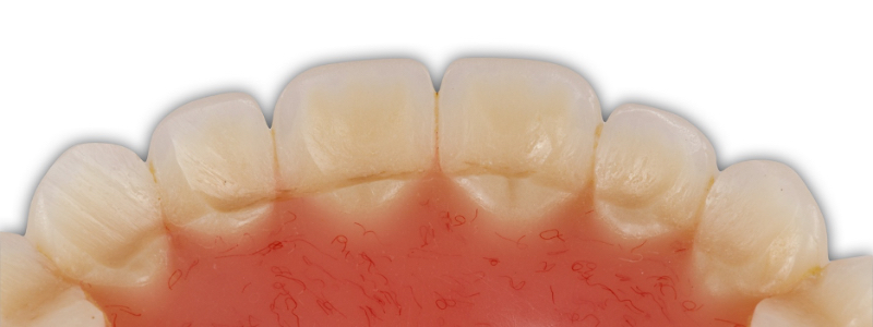 Figure 6. A close up view of the maxillary anterior acrylic denture tooth wear. It is not unusual for denture teeth to separate from the denture base or fracture under these conditions. Hats off to the technician!