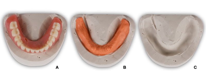 Figure 9. Although the cast fabrication took additional time, it provides the benefit of a stable base for this repair and a subsequent repair should it be necessary. In addition, if an error is introduced during the repair procedure, the stone cast will serve as a control and will allow for a more efficient clinical remount to manage the occlusion.