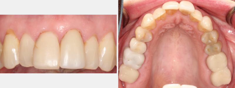 Figure 1: Pre-op diagnostic images.