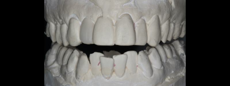 Figure 2: Only #7 was waxed to move the tooth facially. #10 is unwaxed to demonstrate to patient the compromise of length to width ratio.