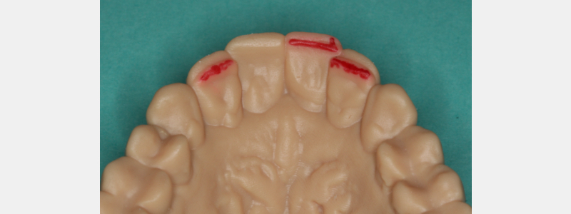Figure 5: The combined output model. Existing incisal edges marked in red.
