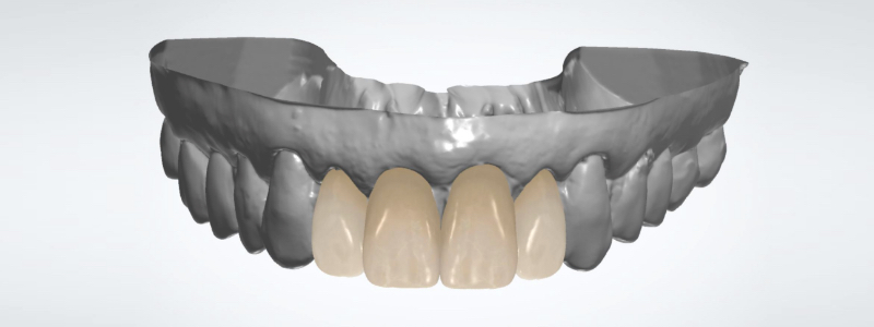Figure 6: Completed virtual wax up rendering.