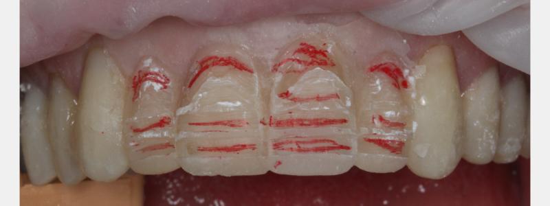 Figure 9: Initial facial depth cuts.