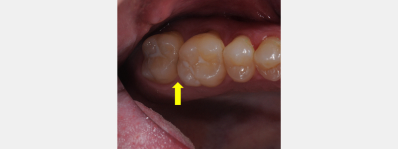 Open mesial contact of the upper right second molar (#2).