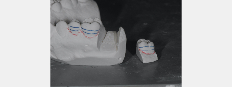 Die cuts of the open contact tooth/detached stone #2.