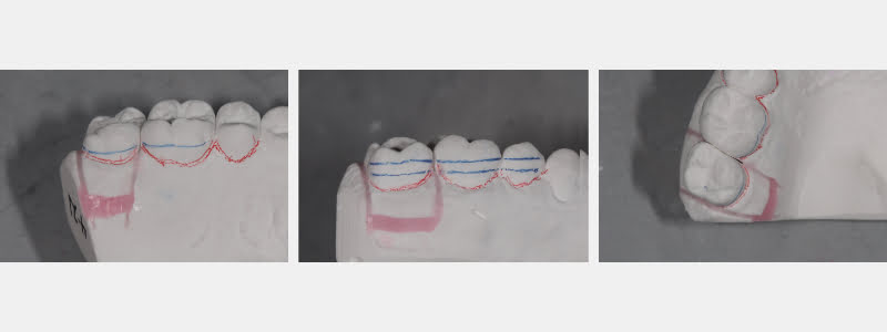 Wax reset of stone tooth and closed contact.